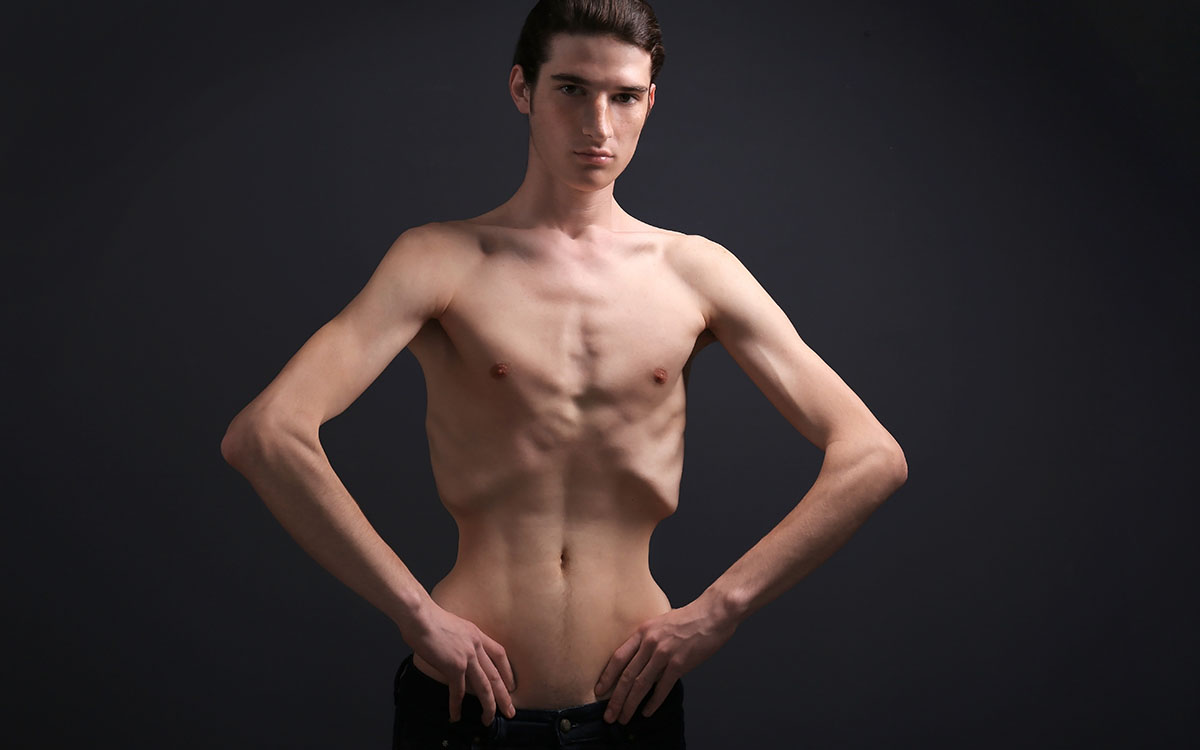 anorexic man