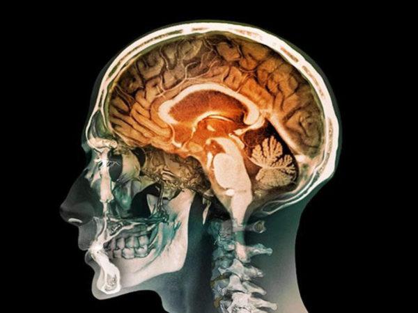 kurzweil's new theory of mind: better, still wrong