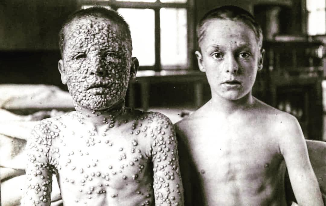 leicester smallpox vaccine experiment
